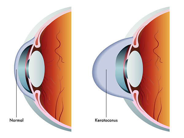 symptoms of keratoconus