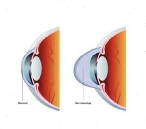 what-is-Keratoconus-insight-vision-optometry